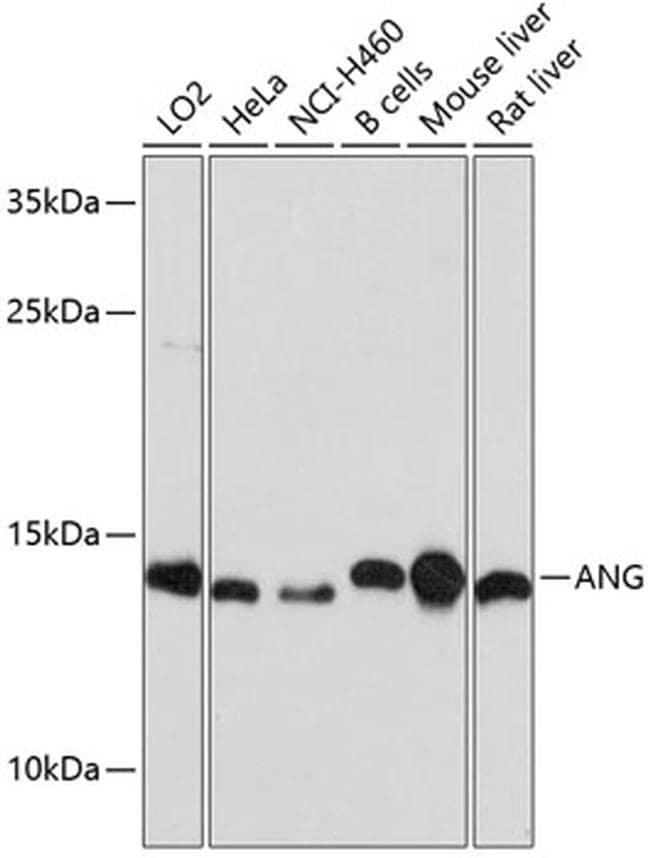 Angiogenin Antibody in Western Blot (WB)