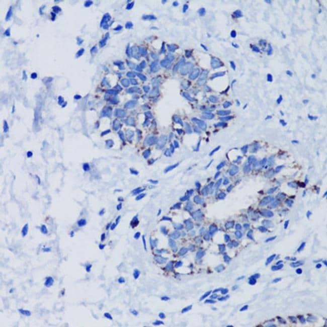 TFAM Antibody in Immunohistochemistry (Paraffin) (IHC (P))