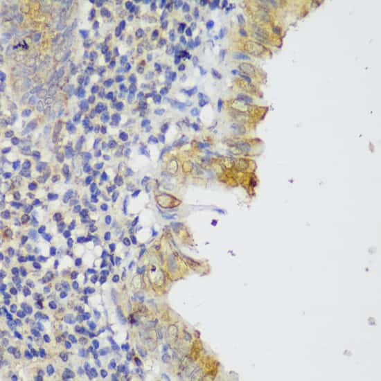 GCC2 Antibody in Immunohistochemistry (IHC)