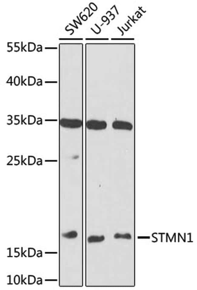 Stathmin 1 Antibody in Western Blot (WB)