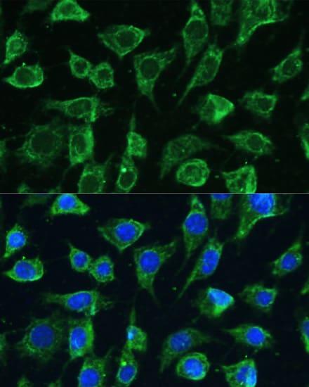 PTPN22 Antibody in Immunocytochemistry (ICC)