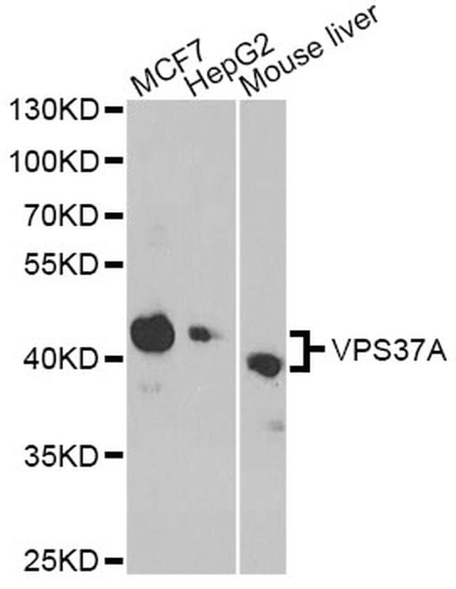 VPS37A Antibody in Western Blot (WB)