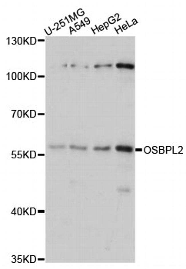 ORP2 Antibody in Western Blot (WB)