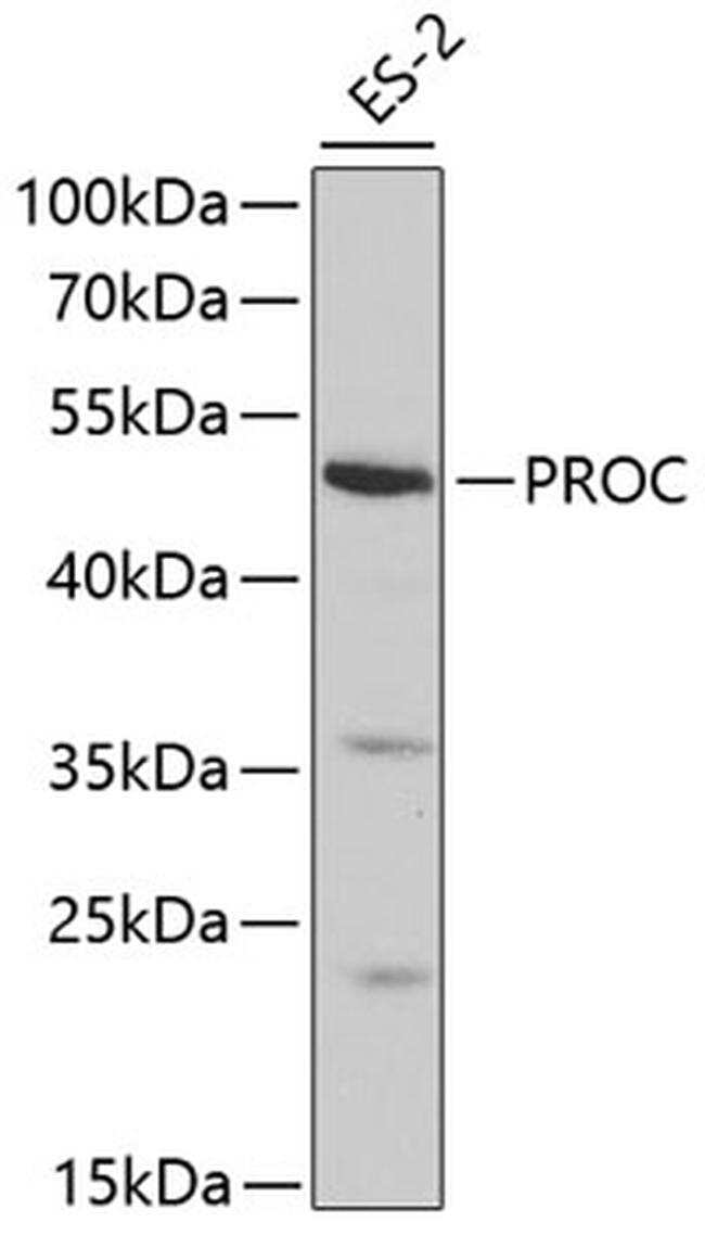 Protein C Antibody in Western Blot (WB)