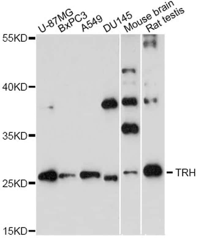TRH Antibody in Western Blot (WB)