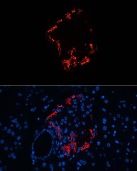 Glucagon Antibody in Immunohistochemistry (IHC)