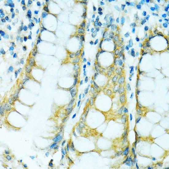 CYP2B6 Antibody in Immunohistochemistry (IHC)