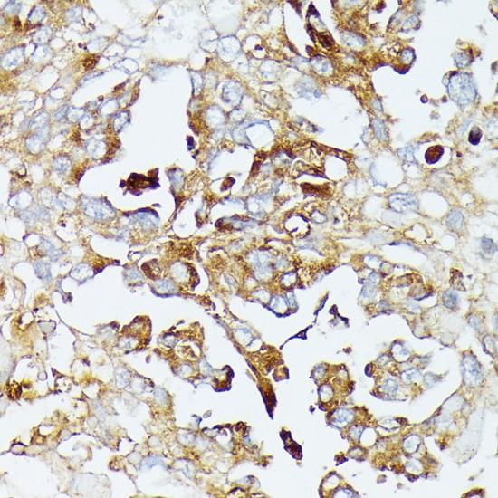 COX15 Antibody in Immunohistochemistry (IHC)
