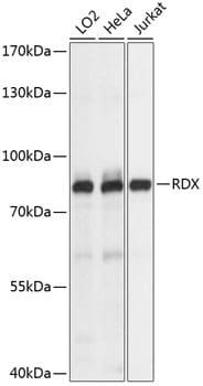 Radixin Antibody in Western Blot (WB)
