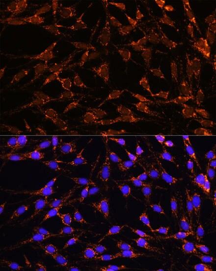 XK Antibody in Immunocytochemistry (ICC)