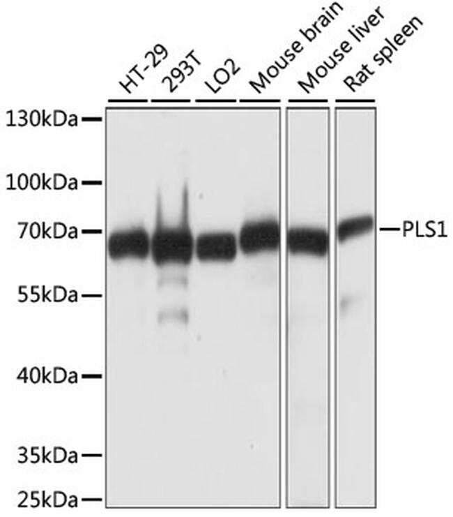 PLS1 Antibody in Western Blot (WB)