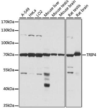 ASC1 Antibody in Western Blot (WB)