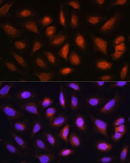 Hopx Antibody in Immunocytochemistry (ICC)