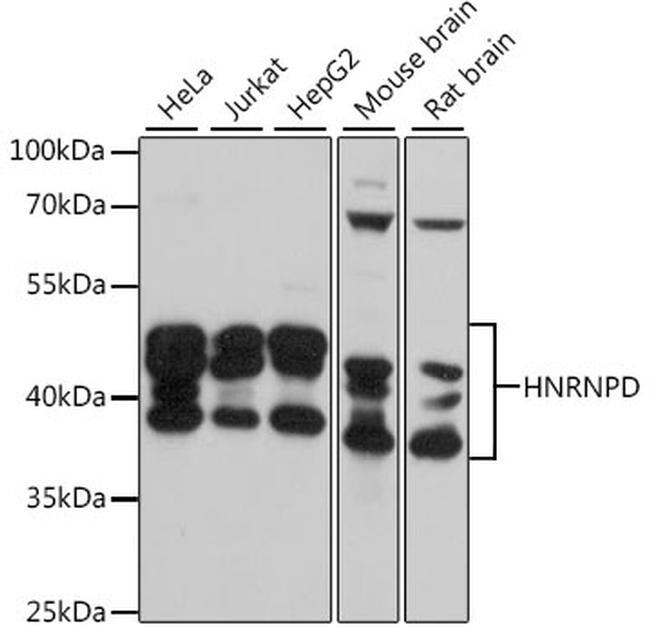 hnRNP D Antibody in Western Blot (WB)