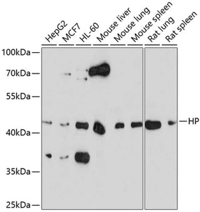 Haptoglobin Antibody in Western Blot (WB)