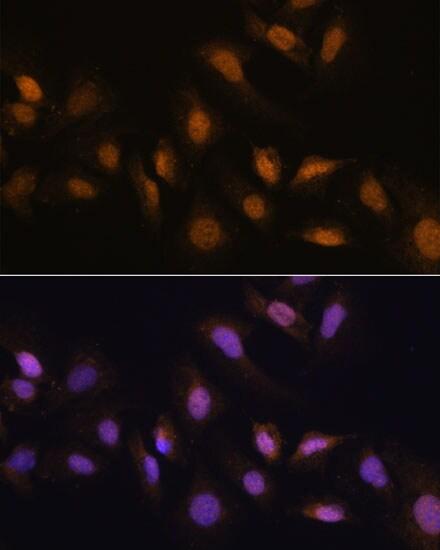 HCC1 Antibody in Immunocytochemistry (ICC)
