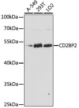 CD2BP2 Antibody in Western Blot (WB)