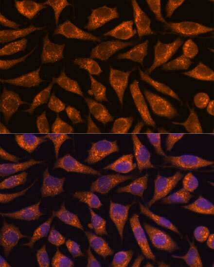 B3GNT4 Antibody in Immunocytochemistry (ICC)
