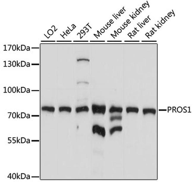 PROTEIN S Antibody in Western Blot (WB)