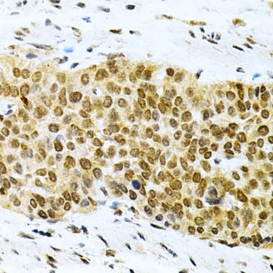 HuR Antibody in Immunohistochemistry (IHC)