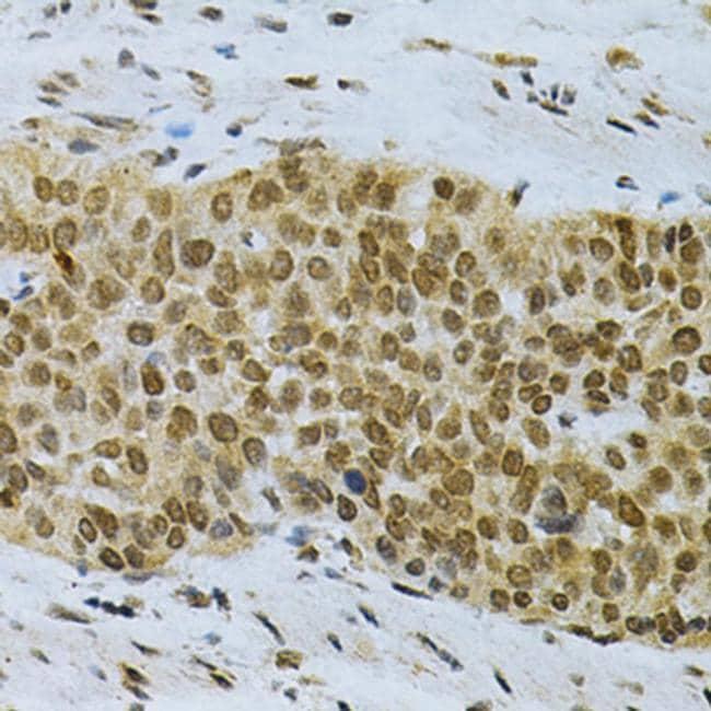HuR Antibody in Immunohistochemistry (Paraffin) (IHC (P))