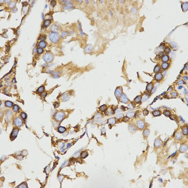 RAP Antibody in Immunohistochemistry (Paraffin) (IHC (P))