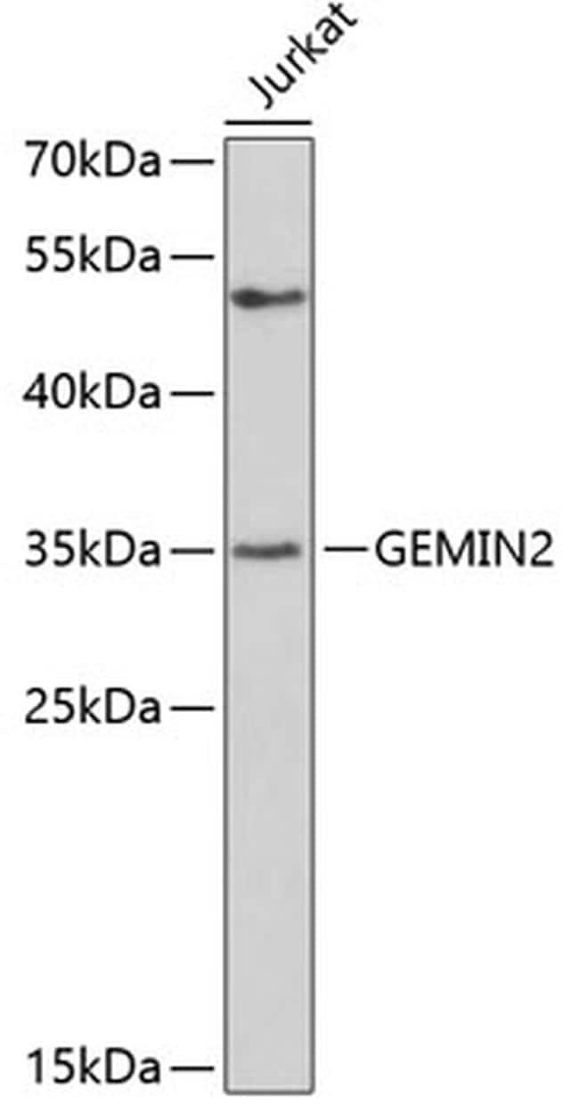 Gemin 2 Antibody in Western Blot (WB)