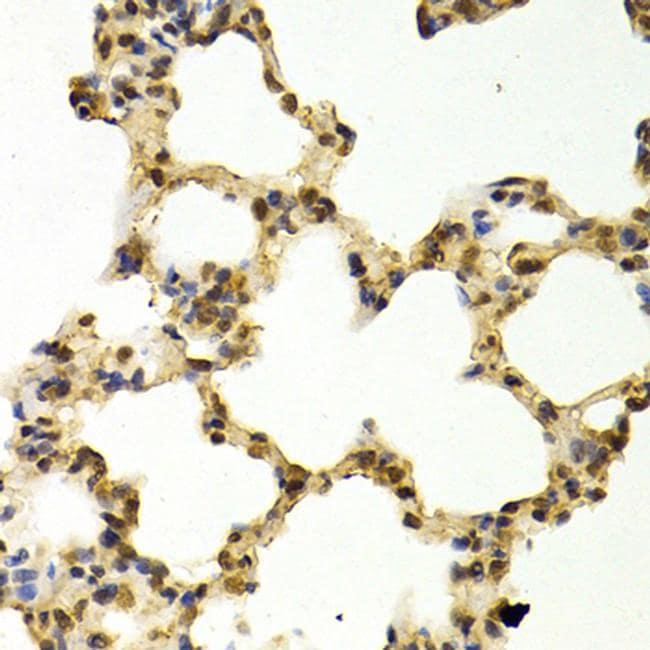 DNMT3A Antibody in Immunohistochemistry (IHC)