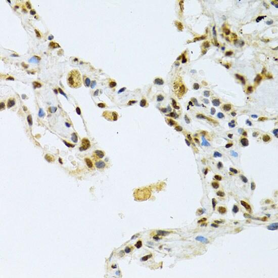 NLK Antibody in Immunohistochemistry (IHC)