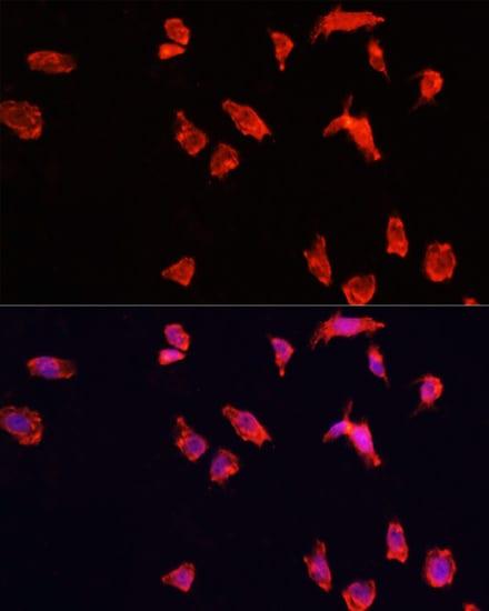 ATP6V1B2 Antibody in Immunocytochemistry (ICC)