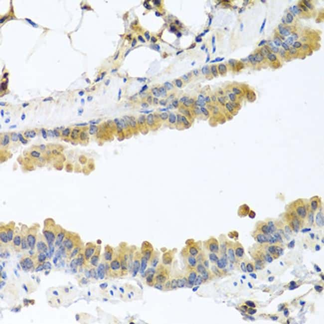 Carboxypeptidase A1 Antibody in Immunohistochemistry (Paraffin) (IHC (P))