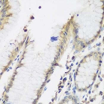 NAT13 Antibody in Immunohistochemistry (IHC)