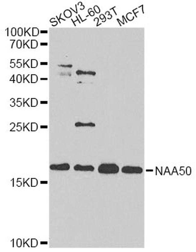 NAT13 Antibody in Western Blot (WB)