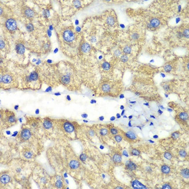 ABAT Antibody in Immunohistochemistry (Paraffin) (IHC (P))