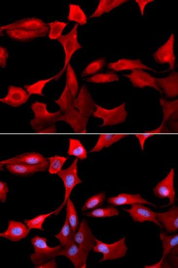 GCLM Antibody in Immunocytochemistry (ICC)