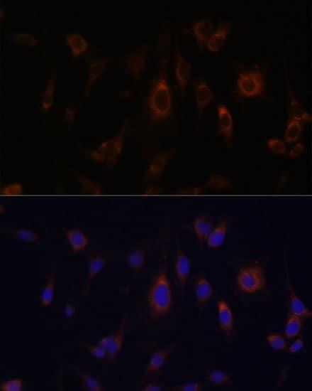 GLRX Antibody in Immunocytochemistry (ICC)