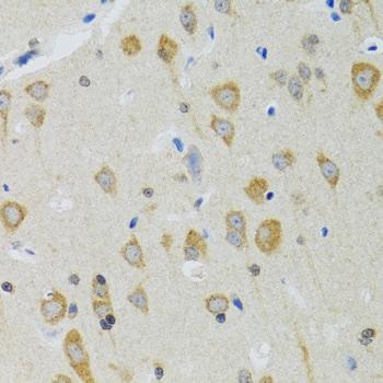 NEU1 Antibody in Immunohistochemistry (IHC)