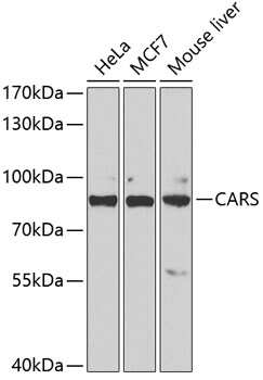 CARS Antibody in Western Blot (WB)