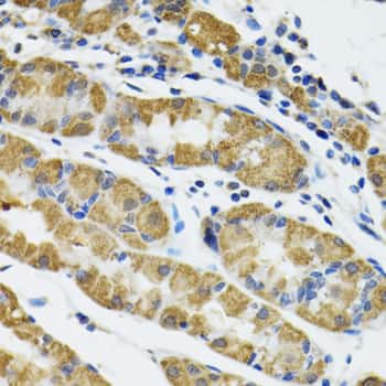 HAPLN1 Antibody in Immunohistochemistry (IHC)
