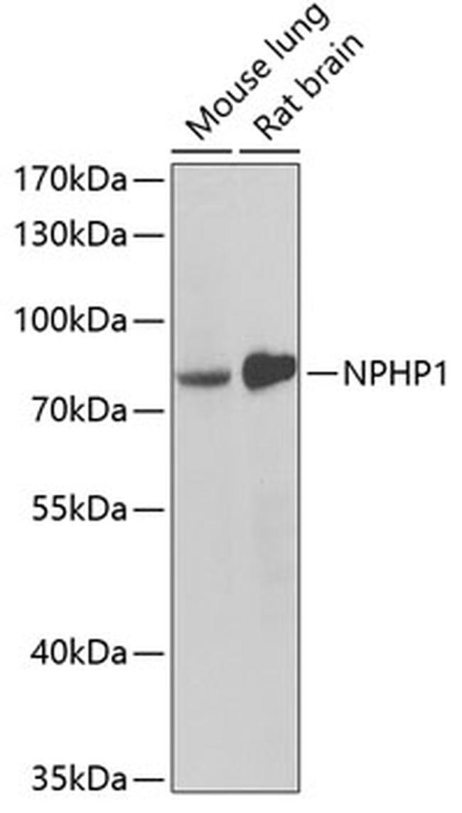 NPHP1 Antibody in Western Blot (WB)