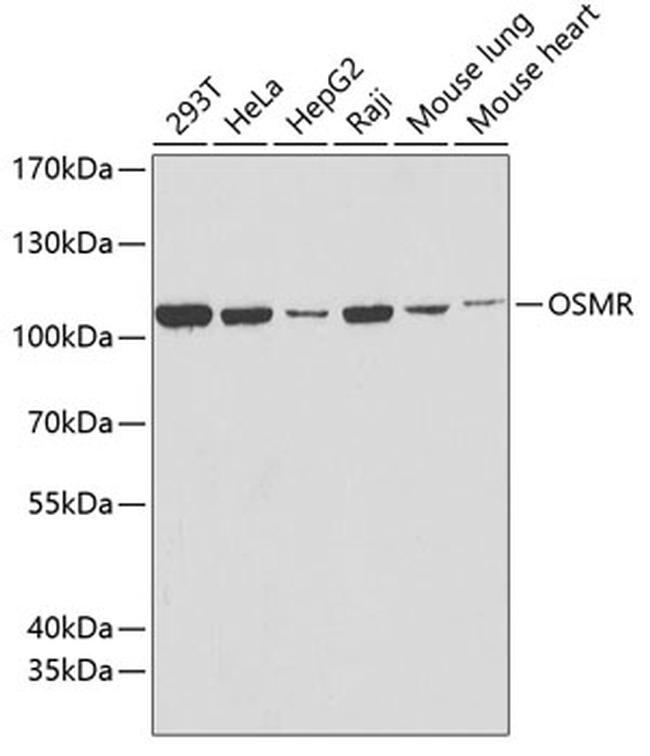 OSMR Antibody in Western Blot (WB)