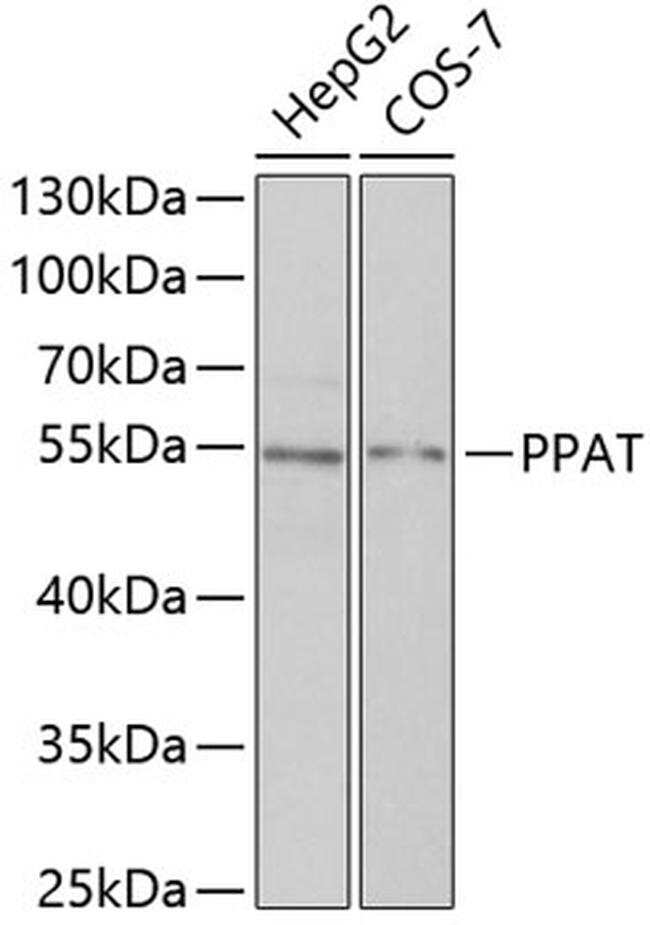 PPAT Antibody in Western Blot (WB)
