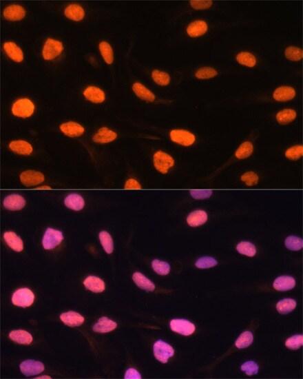 DREF Antibody in Immunocytochemistry (ICC/IF)