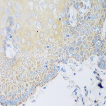 DHODH Antibody in Immunohistochemistry (IHC)