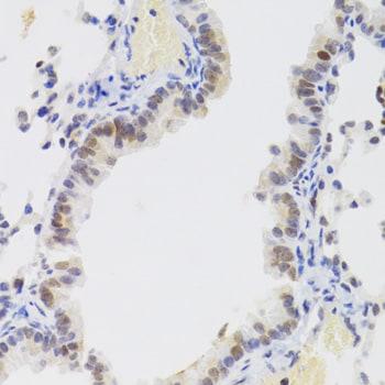 NASP Antibody in Immunohistochemistry (IHC)