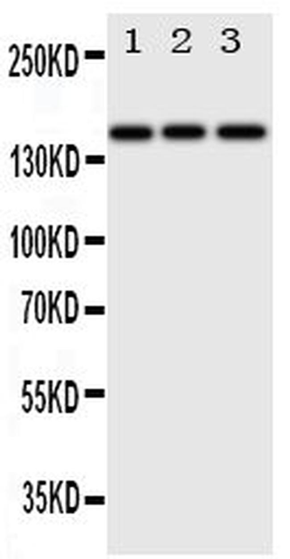 ErbB4 Antibody in Western Blot (WB)