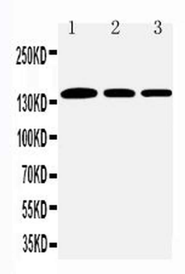 Collagen I Antibody in Western Blot (WB)