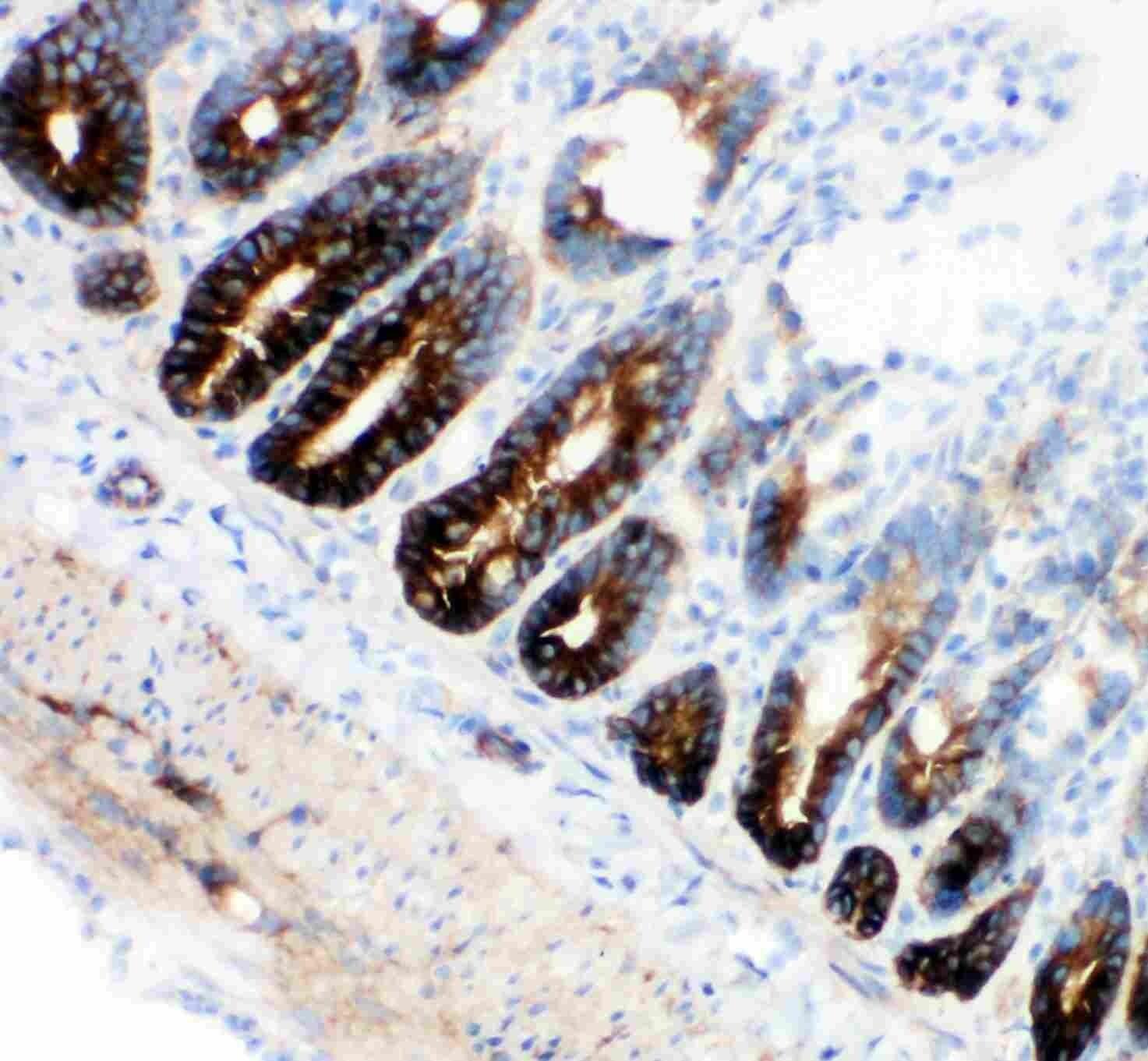 NKCC1 Antibody in Immunohistochemistry (IHC)