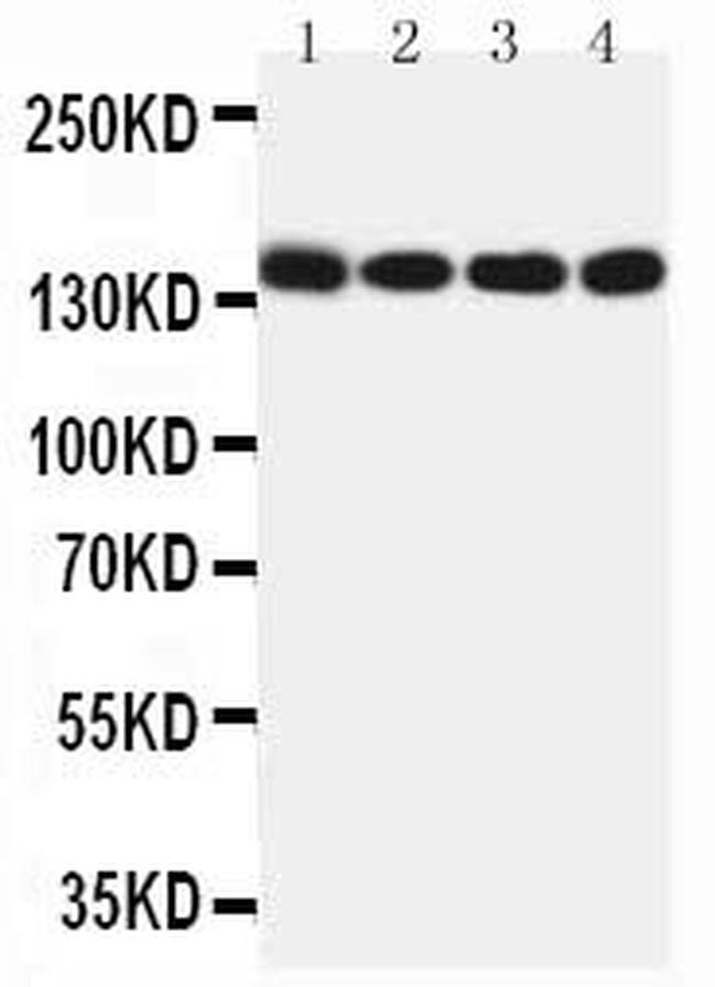 MERTK Antibody in Western Blot (WB)