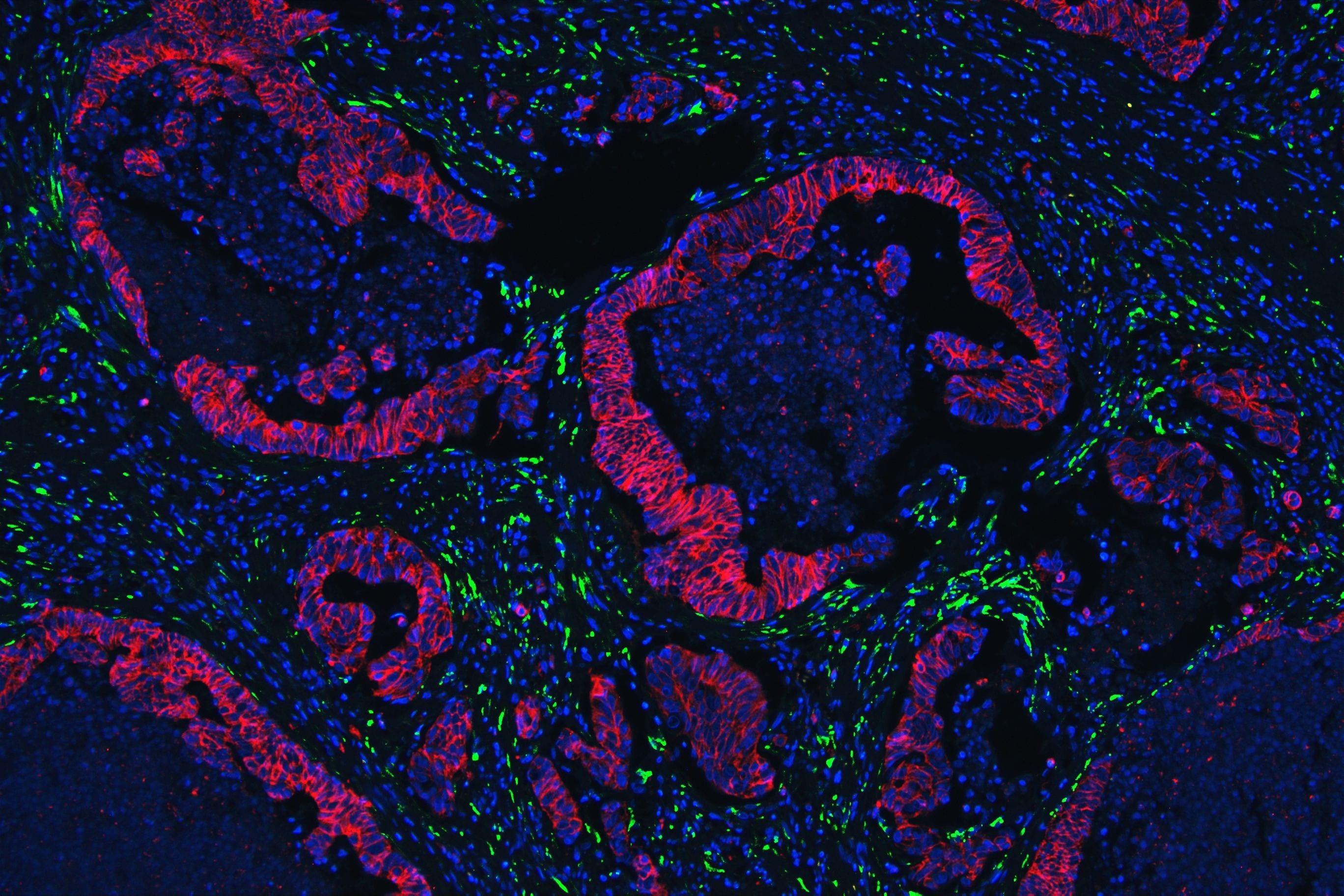 Collagen IV Antibody in Immunohistochemistry (IHC)